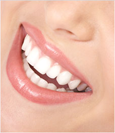 Porcelain Dental Veneers Dentist Vancouver WA