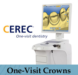 Single Visit Dental Crowns Vancouver WA