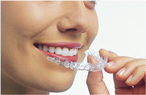 Clear Dental Aligners Vancouver WA