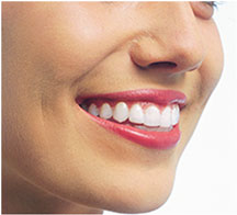 Short Term Dental Braces Vancouver WA